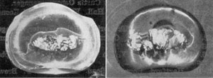Fragment of an American Paperweight: At the left, this fragment is photographed from the underside to show how small the decorative design of colored glass was. At the right, it is seen as magnified by the spherical curve of the glass casing.