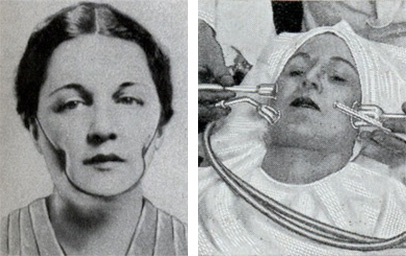 Isabella Gilbert's Dimple Machine from 1936 and a 1932 Suction Treatment for skin-cleaning. Via ModernMechanix.com.