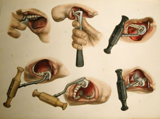 dental-extraction-edited
